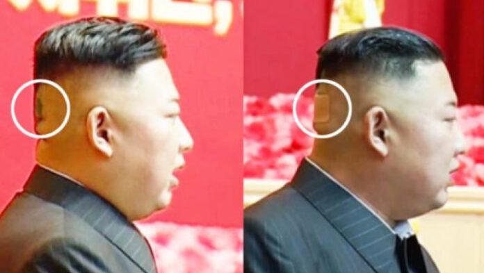 Kim Jong Un a fost văzut cu un semn ciudat pe ceafă
